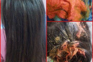 סליים בשיער – אך להוציא סליים מהשיער